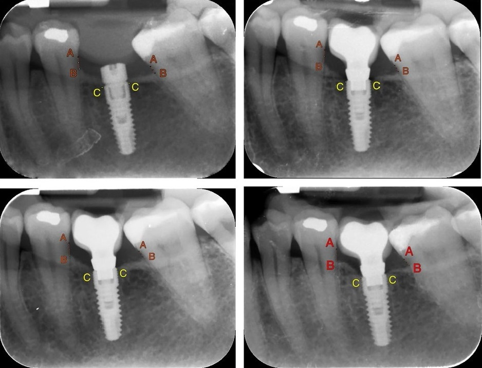 Girb-s-Ballester_et_al-2018-Clinical_Oral_Implants_Research
